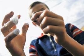 Salud presenta balance de vigilancia en lesiones por pólvora
